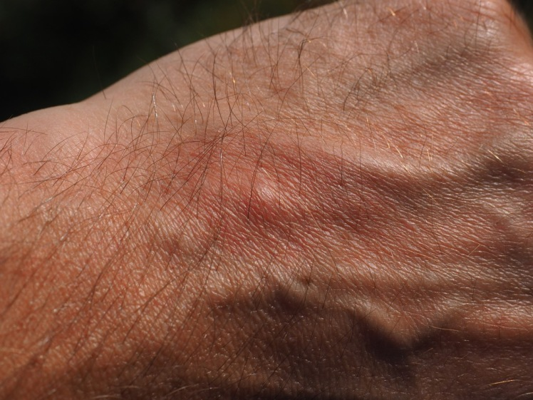mosquito-bite-2117421_1920